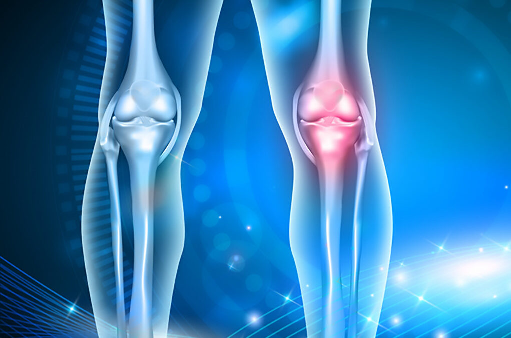 Reduce your NSAIDs with Omega-3 for Arthritis Pain